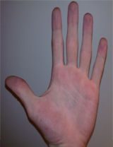 Not even the five fingers of a hand are equal.